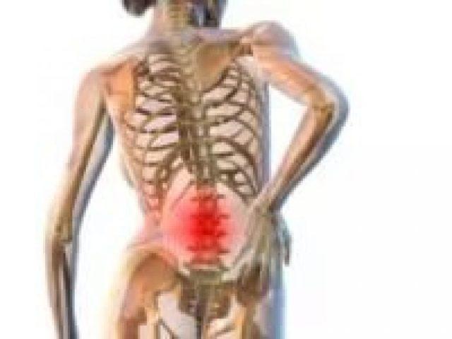 Люмбаго: симптомы и лечение, чем лечить прострел в пояснице, причины, что делать