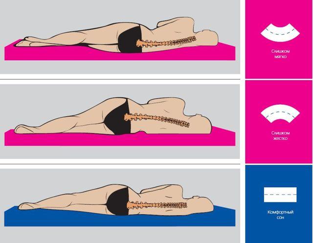 Как правильно спать при шейном остеохондрозе, чтобы не болела шея
