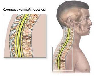 Компрессионный перелом позвоночника в грудном отделе: лечение, последствия