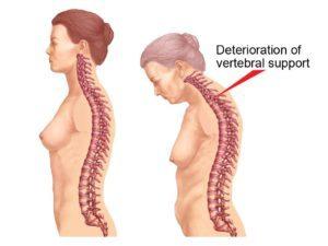 Болезнь Бехтерева у женщин: симптомы и лечение, прогноз для жизни после 40 лет