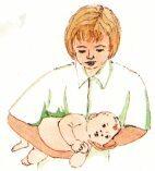 Лечение кривошеи у новорожденных: признаки, как лечить у грудничков в 3 месяца