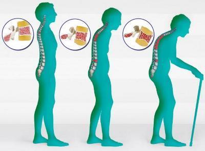 Лечение остеопороза костей: как лечить у мужчин, к какому специалисту обращаться