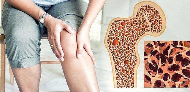 Лечение остеопороза народными средствами, как лечить кости бабушкиной методикой