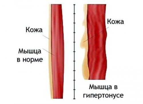 Состояние повышенного мышечного тонуса это