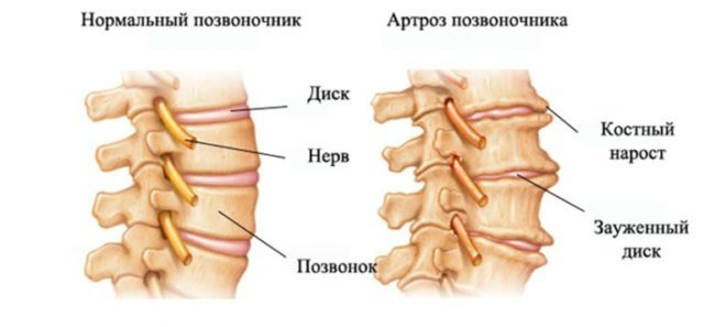 Артроз позвоночника: симптомы и лечение остеоартроза межпозвоночных суставов, что это такое