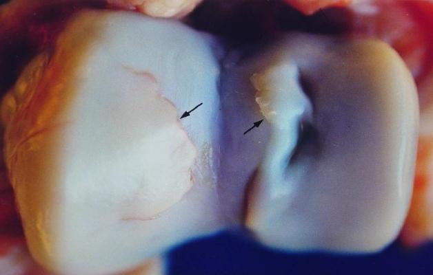 Остеохондроз тазобедренного сустава: симптомы и лечение заболевания бедра
