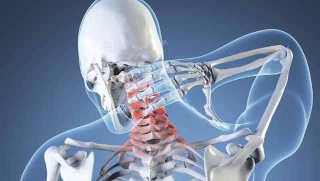 Остеопороз позвоночника: симптомы и лечение, как лечить в шейном или грудном отделе