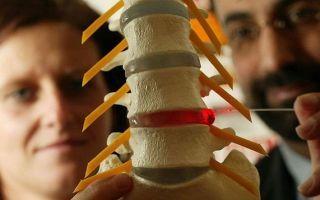 Лечение грыжи позвоночника без операции, как лечить межпозвоночную грыжу поясничного отдела
