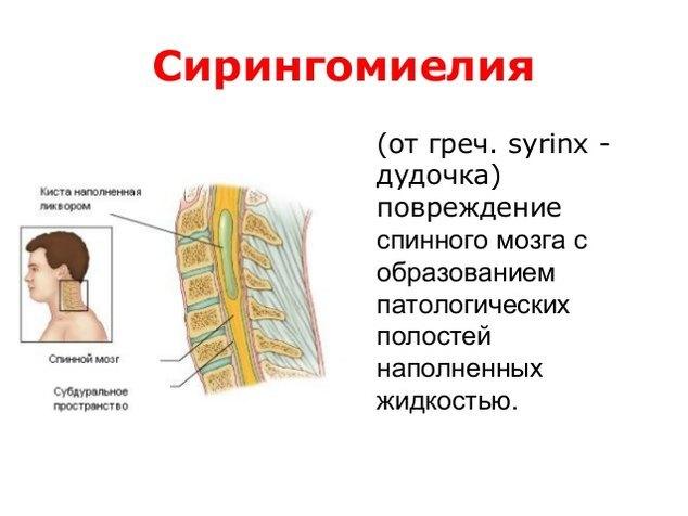 Сирингомиелия: лечение, что это за болезнь, симптомы и причины