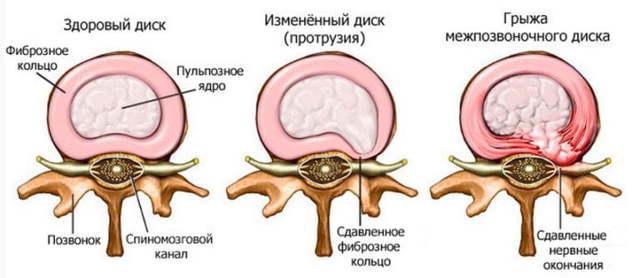 Жжение языка при шейном остеохондрозе: причины онемения, лечение