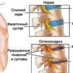 К какому врачу обратиться, если болит спина, какой доктор лечит поясницу