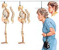 Постменопаузальный остеопороз: лечение, диагностика, причины и симптомы