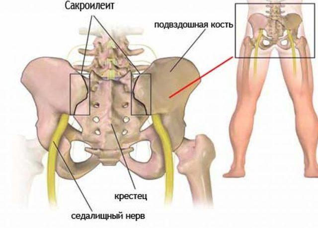 Сакроилеит: симптомы, лечение и прогноз, виды заболевания (лево- или правосторонний, двухсторонний)