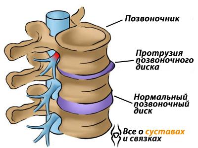 Протрузия межпозвоночных дисков позвоночника: что это такое, лечение и симптомы