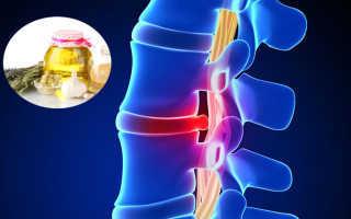 Лечение грыжи позвоночника народными средствами, эффективные методы от межпозвоночной грыжи