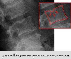 Грыжа Шморля в позвоночнике: что это такое, чем опасны узлы позвонков, лечение, гимнастика