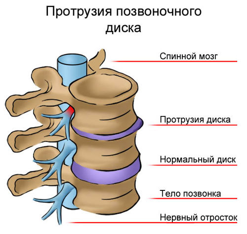 Симптомы межпозвоночной грыжи, первые признаки у женщин и мужчин