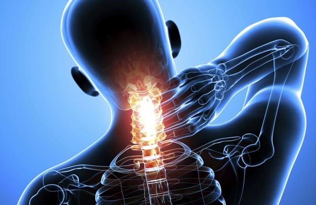 Конкресценция шейных и поясничных позвонков: симптомы, лечение