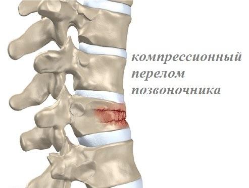 Компрессионный перелом позвоночника: что это такое, симптомы, лечение, последствия перелома позвонков