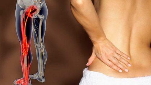 Боль в спине и отдает в ягодицу: почему болит поясница, лечение
