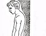 Нарушение осанки: главные причины, профилактика, виды и признаки асимметричного позвоночника