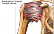 Китайский перцовый пластырь от боли в спине и при остеохондрозе шейного отдела