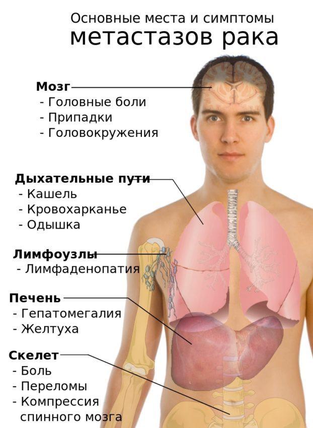 Рак позвоночника: симптомы и проявление, могут ли боли в спине быть признаком онкологии