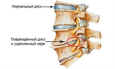 Боль в спине в области лопаток посередине