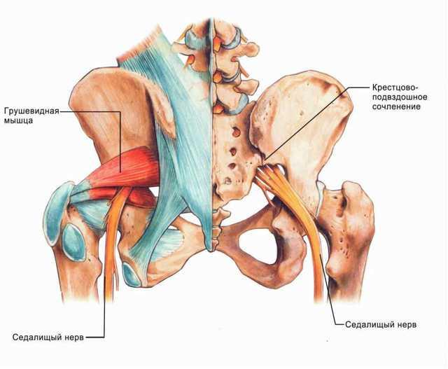 Крестцово-подвздошный сустав: анатомия сочленения, заболевания, лечение