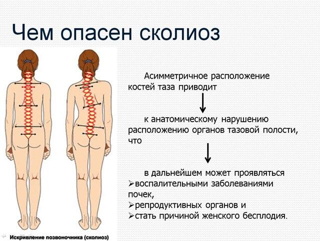 Сколиоз 3 степени: лечение без операции в домашних условиях у взрослых и подростков