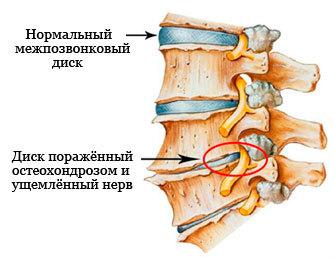 Защемление нерва в пояснице: что делать, если защемило, лечение поясничного отдела позвоночника