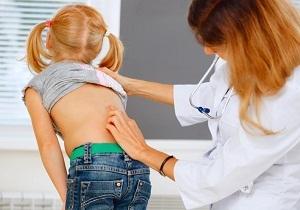 Сколиоз 1 степени: лечение у подростков и взрослых, как лечить в домашних условиях