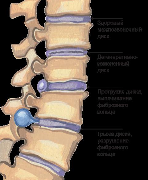Грыжа поясничного отдела позвоночника: симптомы и лечение, как называется межпозвоночная форма заболевания
