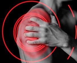 Импинджмент-синдром плечевого сустава (субакромиальный): лечение, причины, симптомы