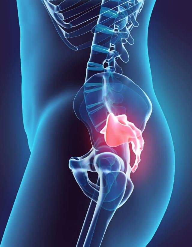 Воспаление копчика у мужчин и женщин: симптомы и лечение, что делать, если воспалился