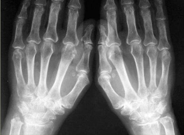 Рентген стадии ревматоидного артрита и рентгенологические признаки