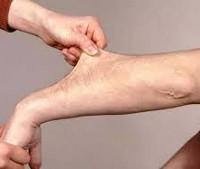 Синдром Элерса-Данлоса: симптомы у человека, лечение у детей и взрослых