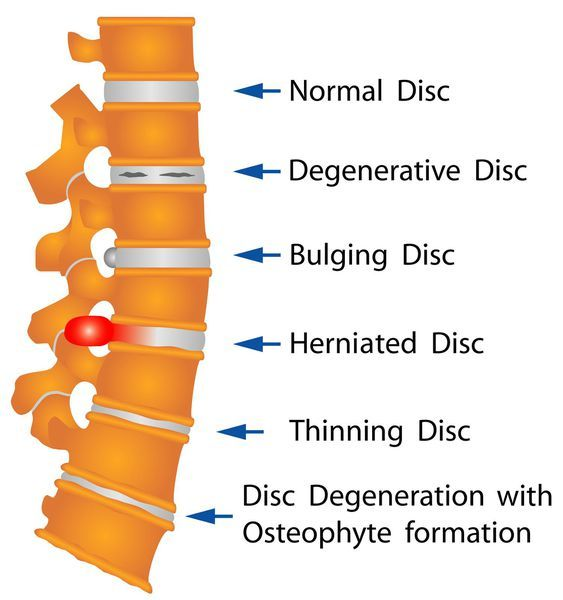 Грыжа позвоночника: что это такое, симптомы и лечение грыжи межпозвоночного диска