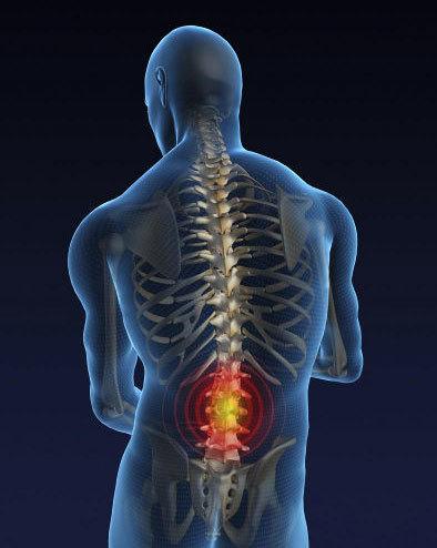Симптомы остеохондроза позвоночника: первые признаки заболевания спины, причины