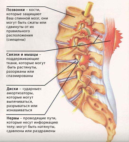 Остеохондроз позвоночника: что это такое, симптомы и лечение, причины, что делать при хондрозе