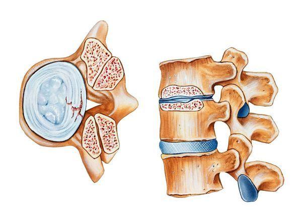 Стеноз позвоночного канала (поясничного, шейного отдела): симптомы, что это такое, лечение без операции