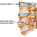 Признаки межреберной невралгии у женщин: основные симптомы, причины и лечение (справа или слева)