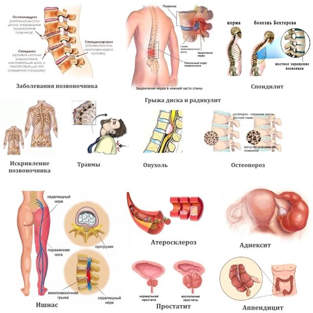 Как лечить спину: лечение в домашних условиях, препараты и народные средства