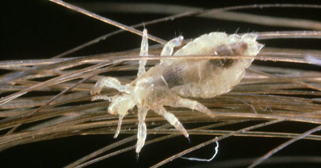 Лак для волос от вшей и гнид: отзывы, помогает ли от паразитов лак прелесть для волос, инструкция по применению