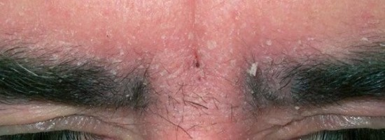 Перхоть на бровях: почему шелушится кожа и как от этого избавиться, причины и лечение себорейного дерматита и грибка на бровях
