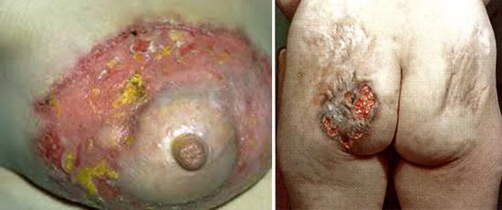 Сухая кожа головы и выпадение волос могут быть симптомами алопеции при сифилисе, как лечить сифилитическое облысение