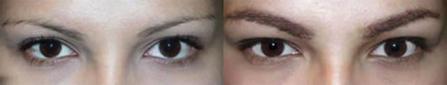 Пересадка волос на брови: фото до и после, цена, отзывы