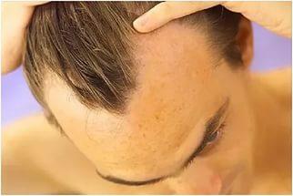 Как укрепить волосы от выпадения: как предотвратить, что нужно делать чтобы прекратить облысение у мужчин и женщин в домашних условиях, профилактика, отзывы