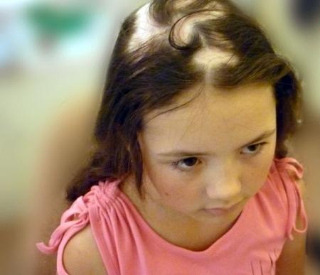 Очаговая алопеция у детей (гнездная): причины и лечение, фото, как и почему проявляется заболевание у маленького ребенка, у подростков
