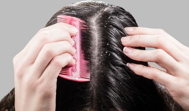 Шампунь виши деркос от перхоти: отзывы, цена, состав, инструкция по применению, подойдет ли для сухих и жирных волос, фото
